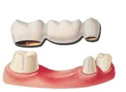 diagram of a dental bridge and how it replaces a missing tooth